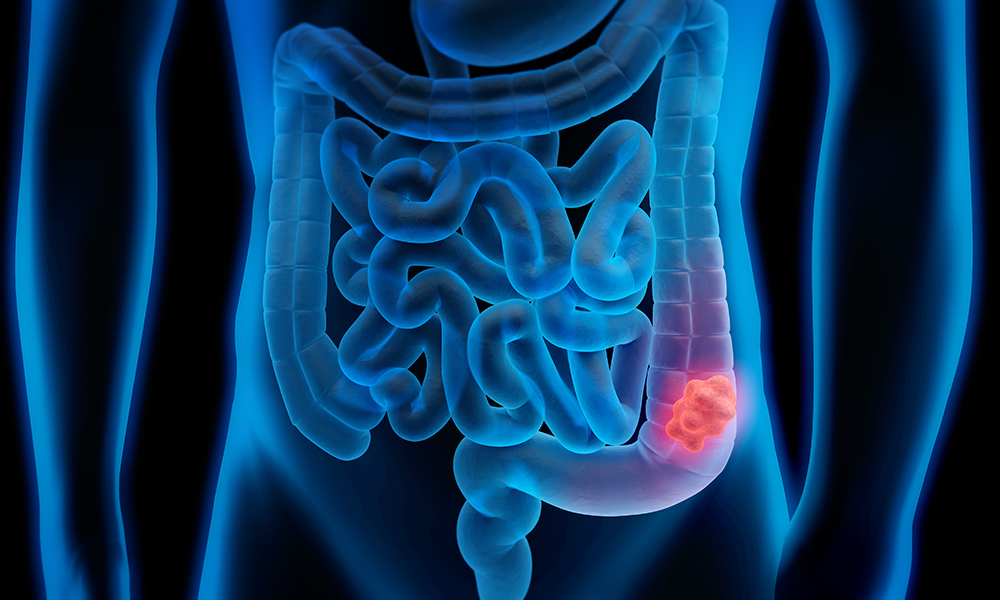 Colon-Cancer-Illustrated-Feature-DTM