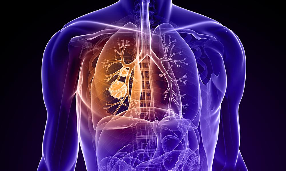 Lung-Cancer-Illustration-Feature-DTM