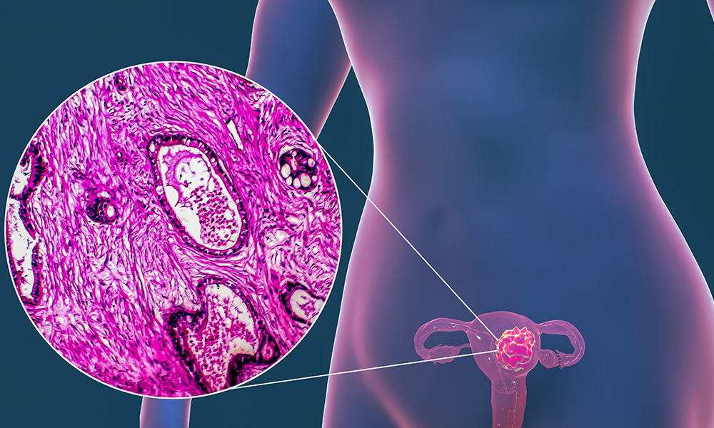 Uterine-Cancer-Illustrated-Feature-DTM