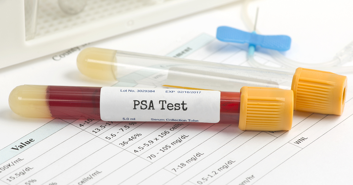 prostate psa blood test)