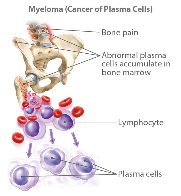 Leukemia (Cancer of the Lymphoblasts)