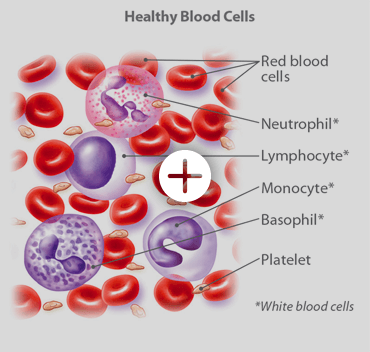 Healthy blood cells include read blood cells, neutrophil, lymphocyte, monocyte, basophil, platelets and white blood cells