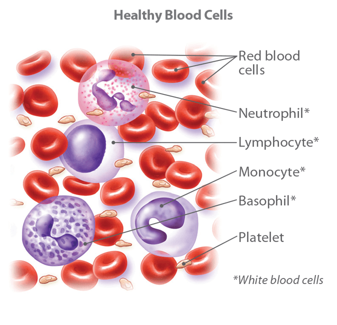 Blood cancers - types and treatment options | CTCA