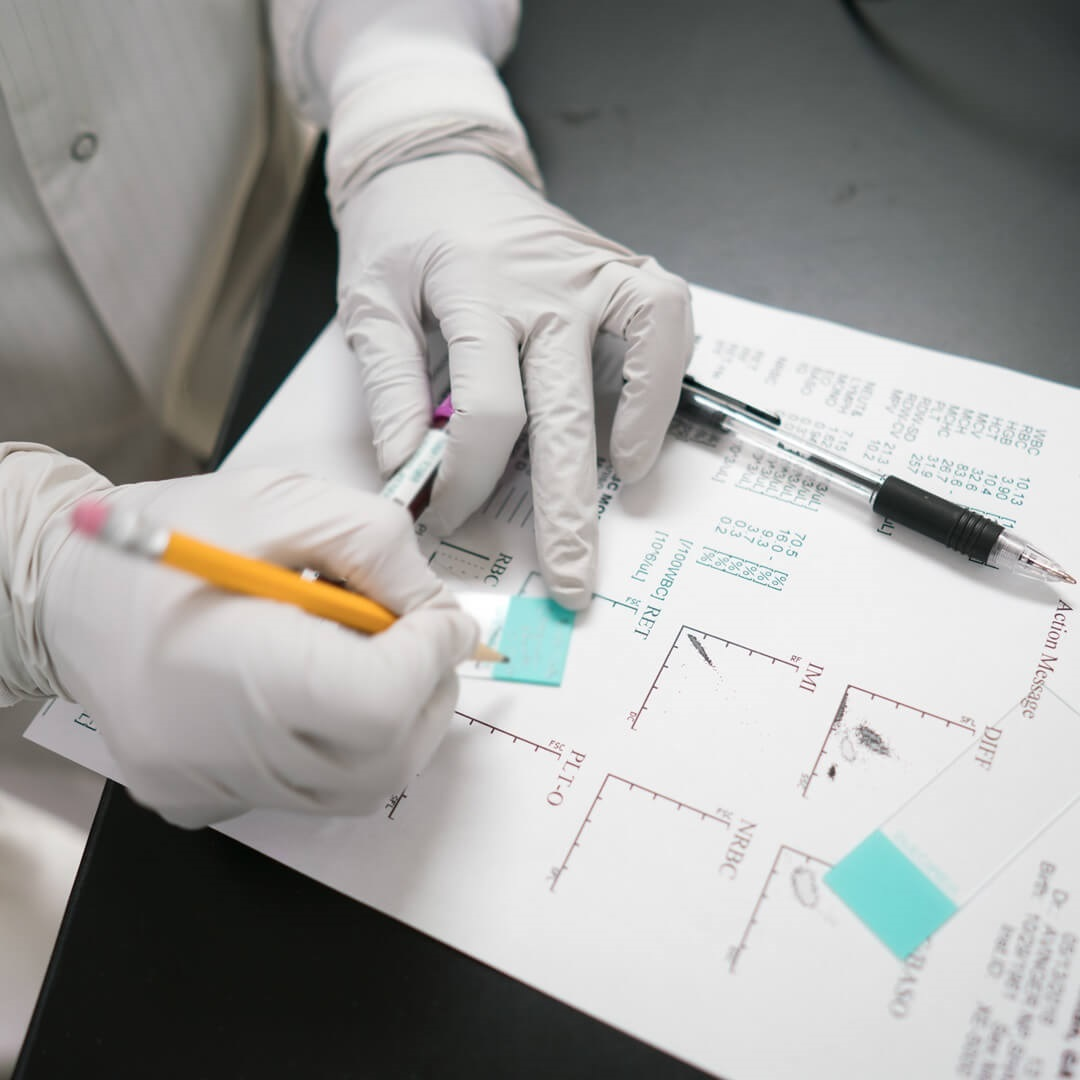 scientist writing out action message for cancer diagnosis and treatment